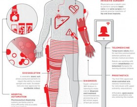 Everything You Need to Know about Medical Robotics in One Infographic