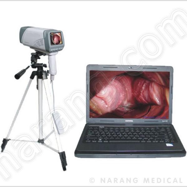 laptop-video-colposcope-dp3500